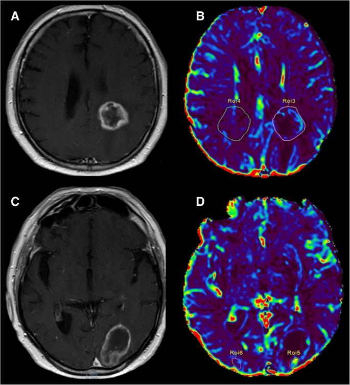 Brain-Tumor-Imaging-kiomedical